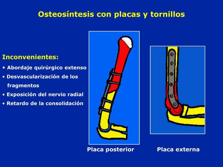 Osteosíntesis con placas y tornillos