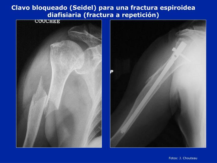 Clavo bloqueado (Seidel) para una fractura espiroidea diafisiaria (fractura a repetición)