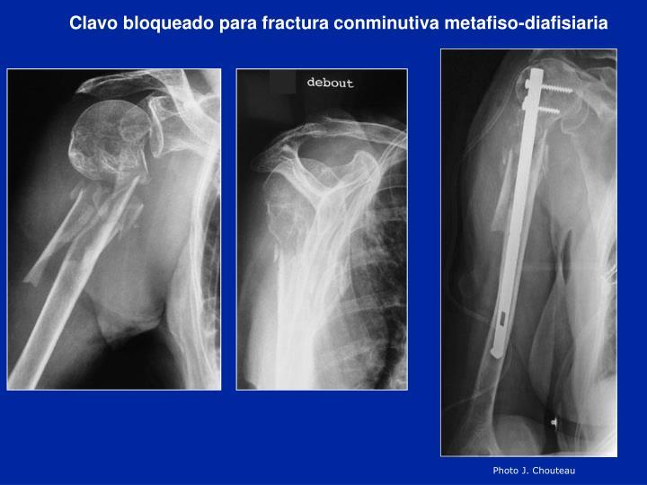 Clavo bloqueado para fractura conminutiva metafiso-diafisiaria