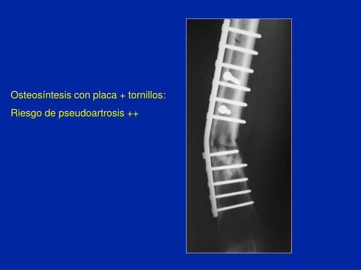 Osteosíntesis con placa + tornillos:
