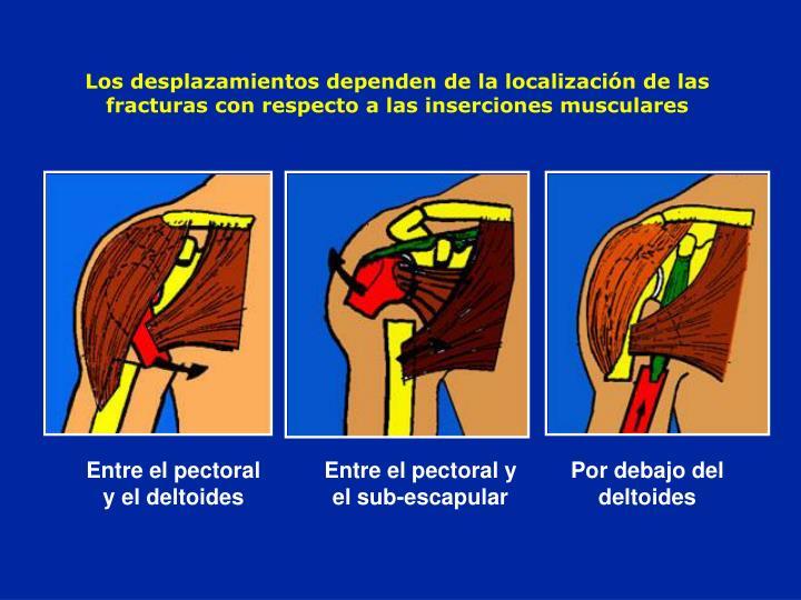 Los desplazamientos dependen de la localización de las fracturas con respecto a las inserciones musculares