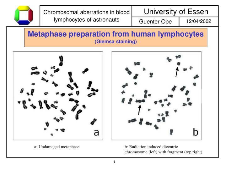 Metaphase preparation from human lymphocytes