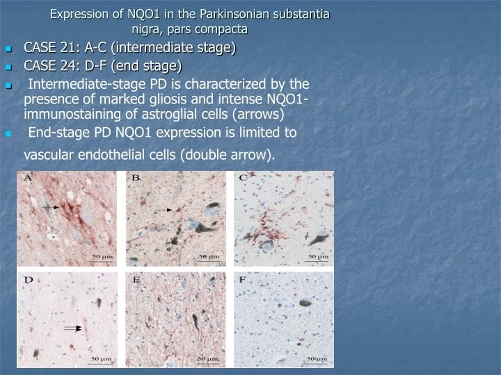 Expression of NQO1 in the Parkinsonian substantia nigra, pars compacta