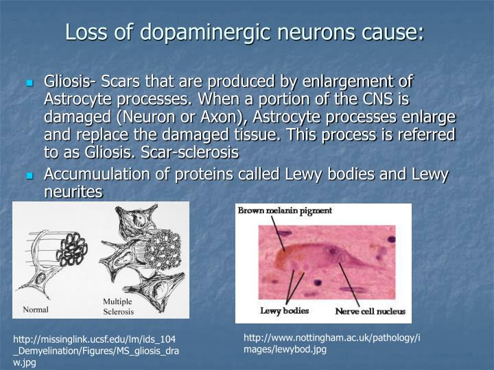 Loss of dopaminergic neurons cause
