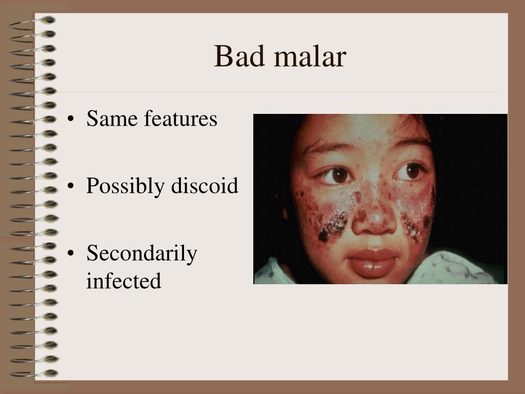 Bad malar