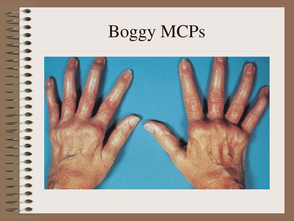 Boggy MCPs