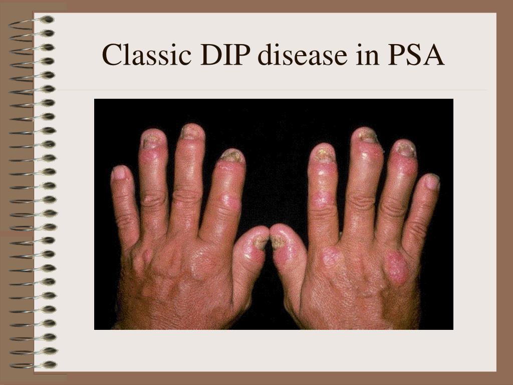 Classic DIP disease in PSA