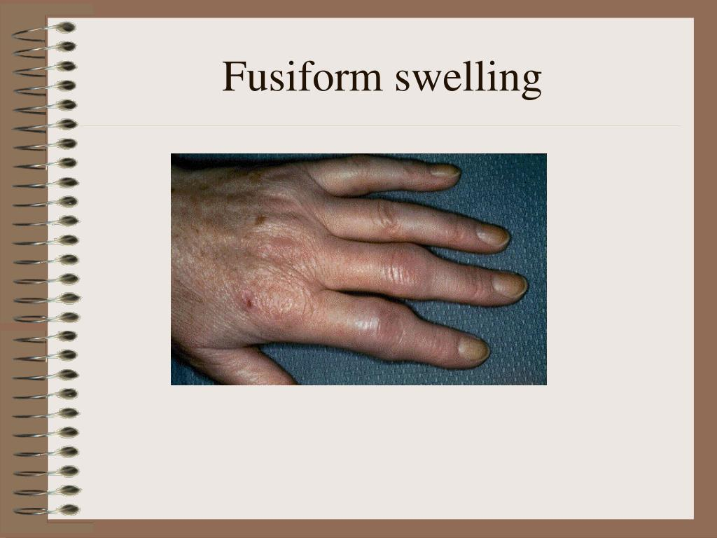 Fusiform swelling