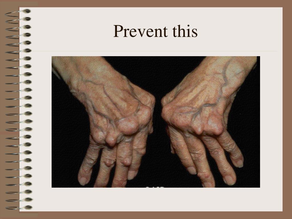 Prevent this