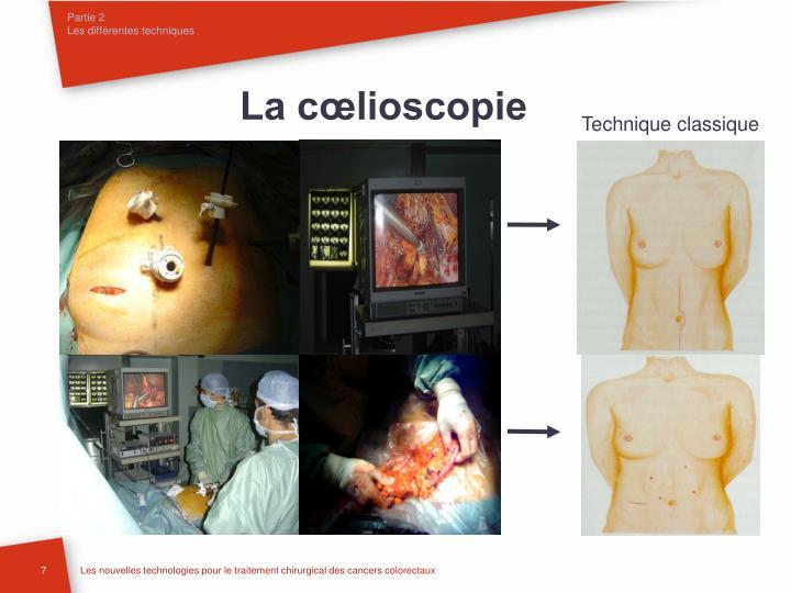 La cœlioscopie