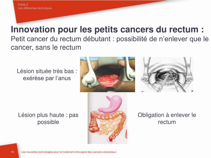 Innovation pour les petits cancers du rectum :