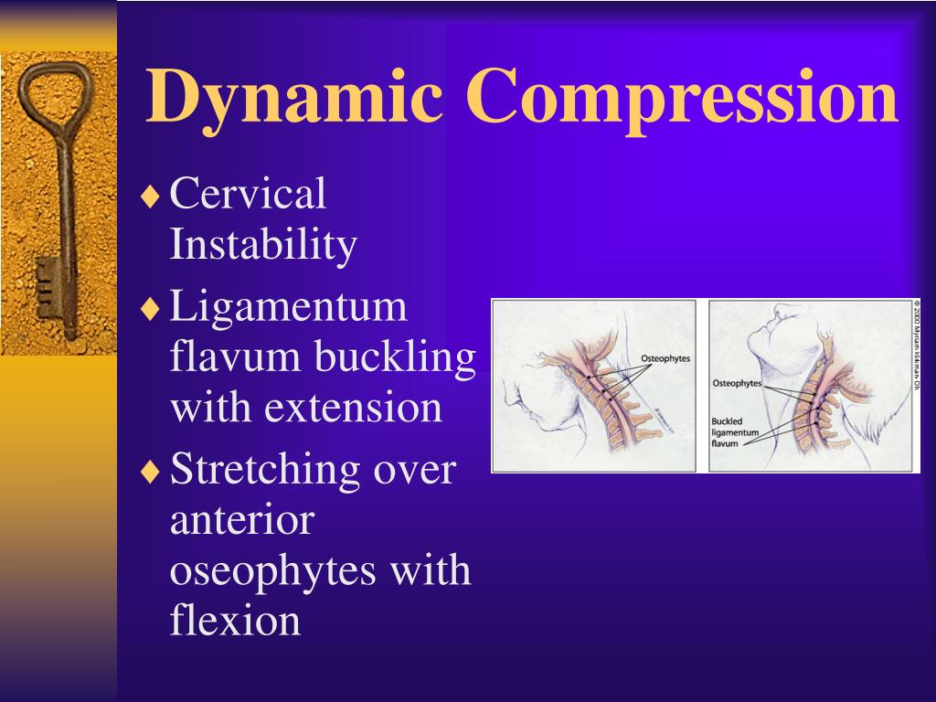 Dynamic Compression