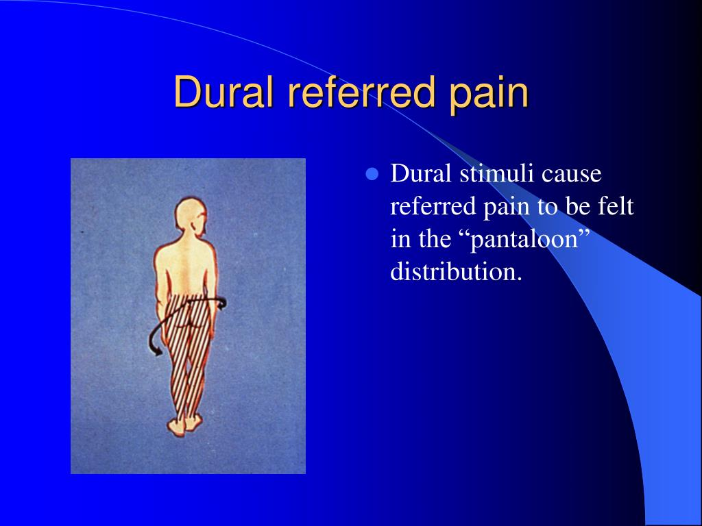 Dural referred pain