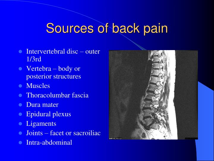Sources of back pain
