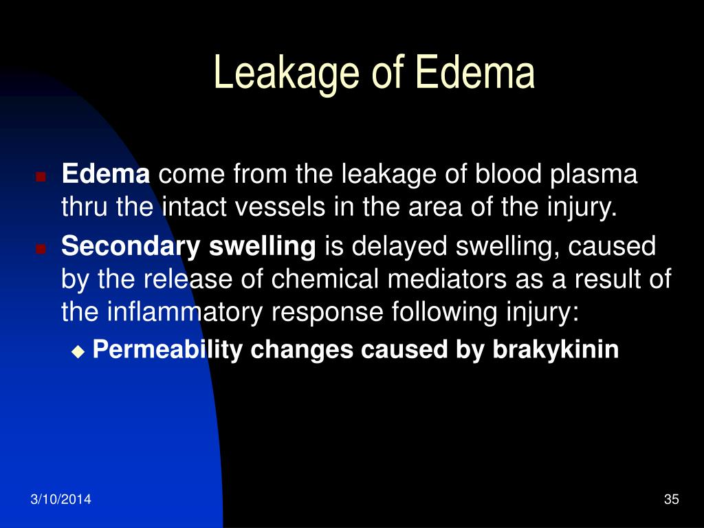 Leakage of Edema