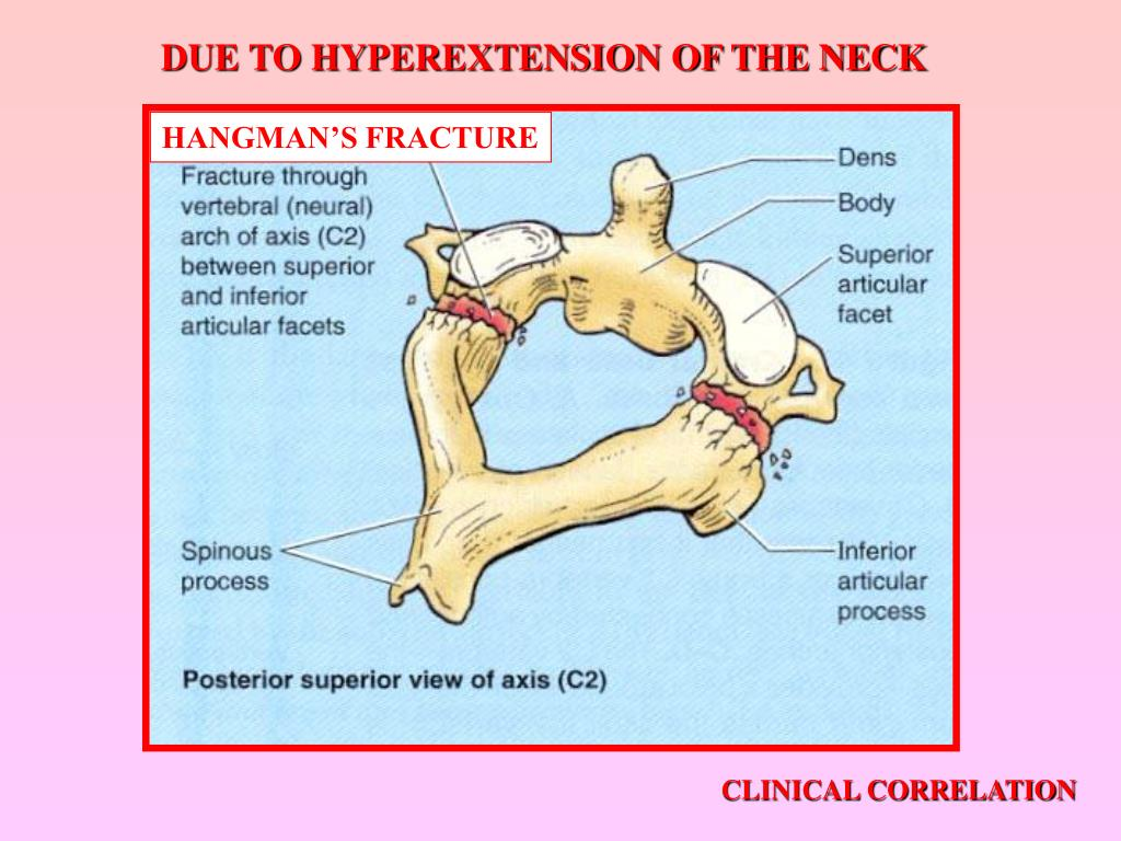DUE TO HYPEREXTENSION OF THE NECK