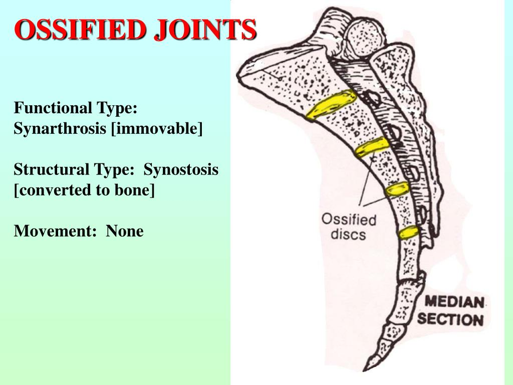 OSSIFIED JOINTS