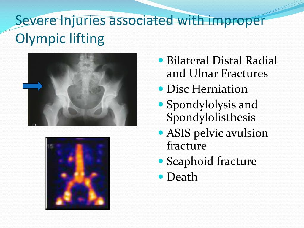 Severe Injuries associated with improper Olympic lifting