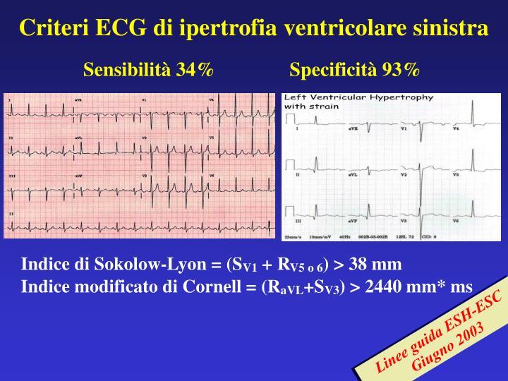 Criteri ECG di ipertrofia ventricolare sinistra