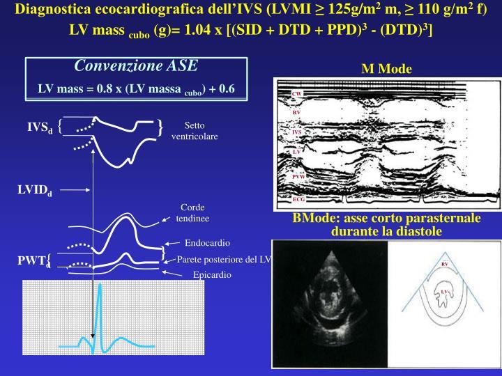 Diagnostica ecocardiografica dell'IVS (LVMI