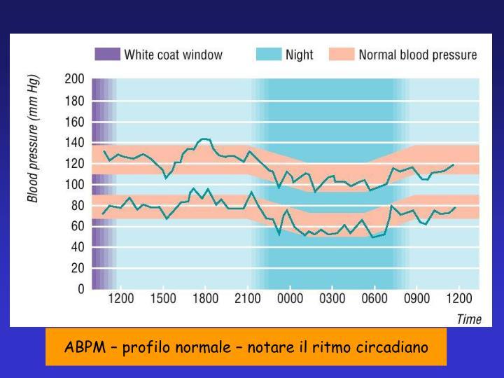 ABPM – profilo normale – notare il ritmo circadiano