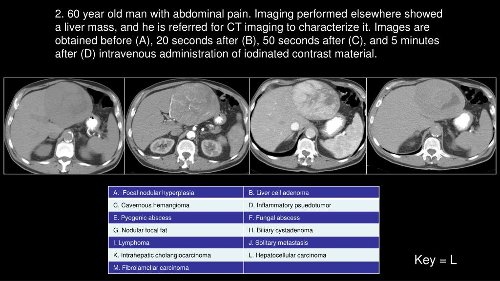 2. 60 year old man with abdominal pain. Imaging performed elsewhere showed