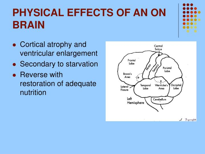 PHYSICAL EFFECTS OF AN ON BRAIN