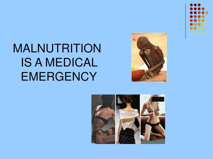 MALNUTRITION IS A MEDICAL EMERGENCY