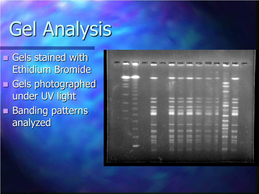 Gel Analysis