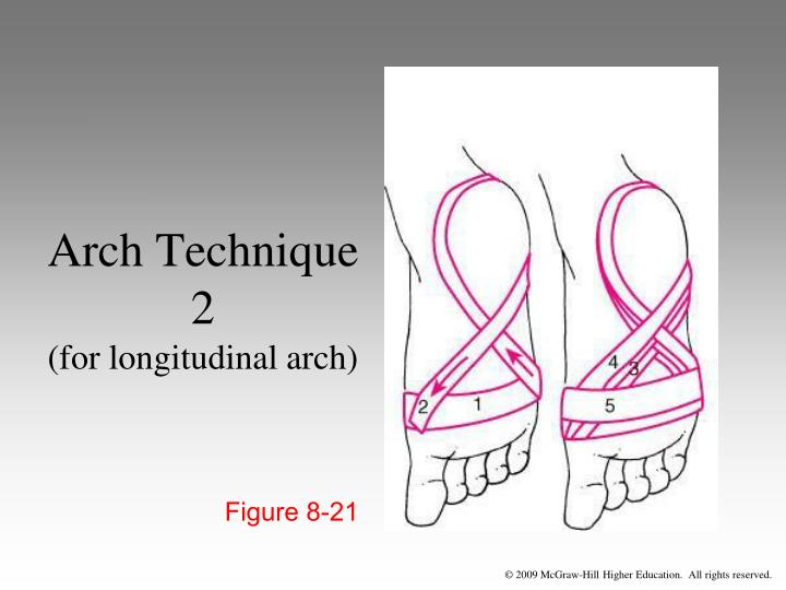 Arch Technique 2