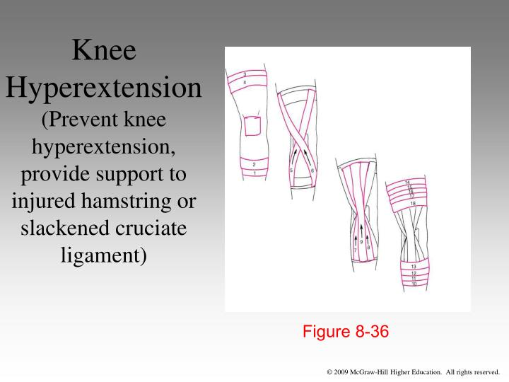 Knee Hyperextension