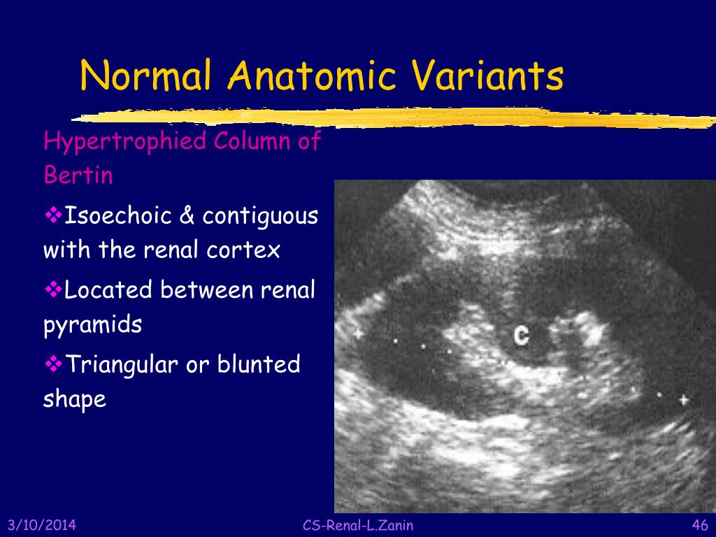 Normal Anatomic Variants