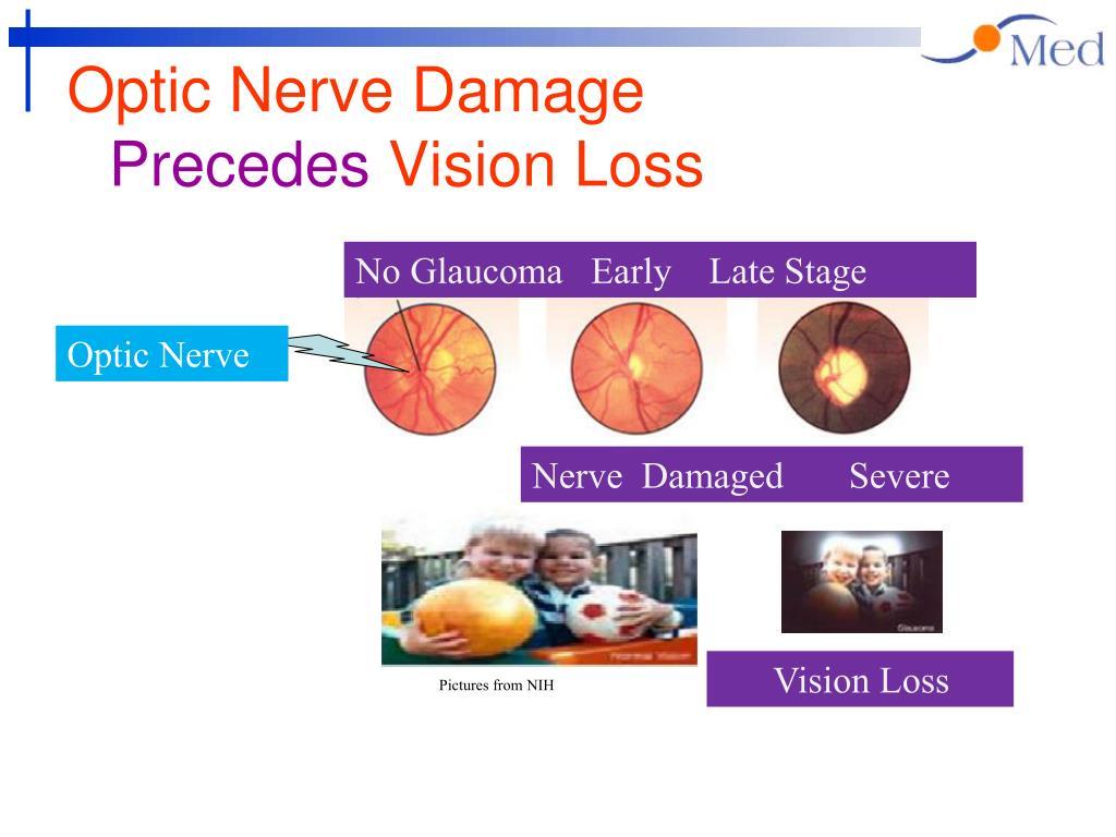 Optic Nerve Damage