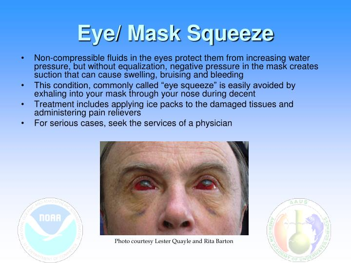 Eye/ Mask Squeeze