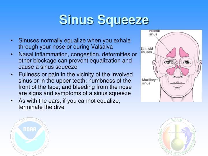 Sinus Squeeze
