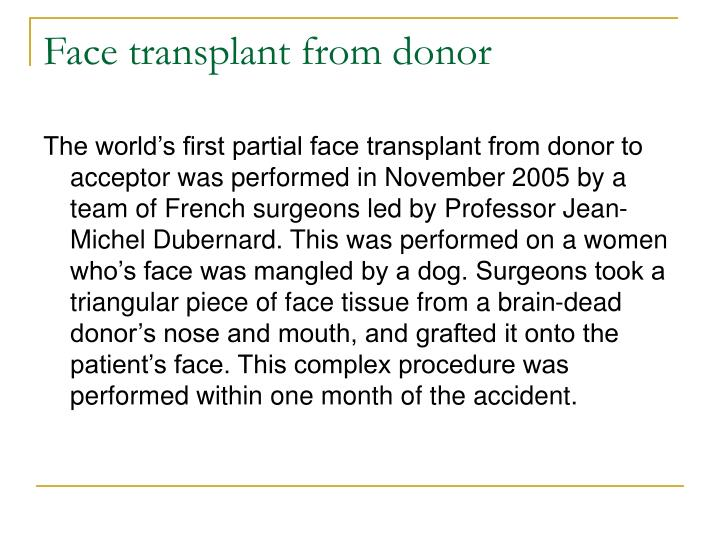Face transplant from donor