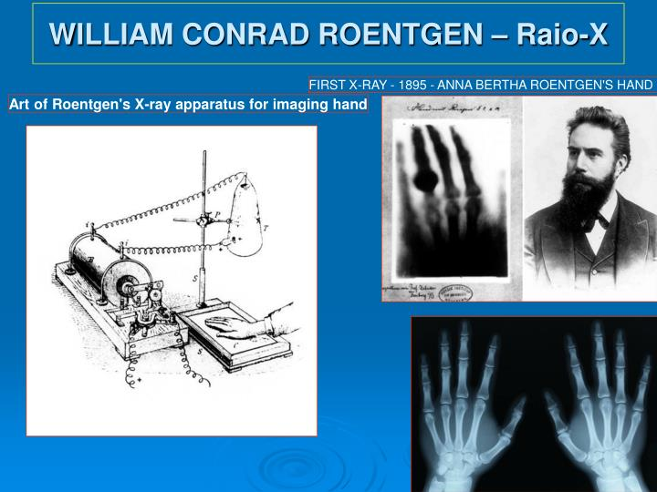 WILLIAM CONRAD ROENTGEN – Raio-X