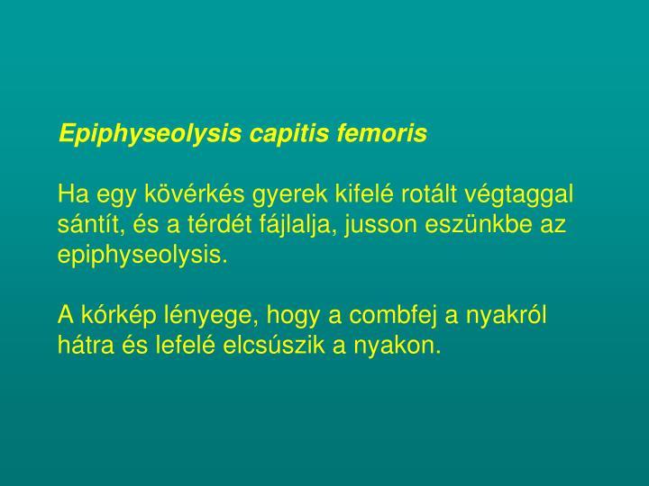 Epiphyseolysis capitis femoris