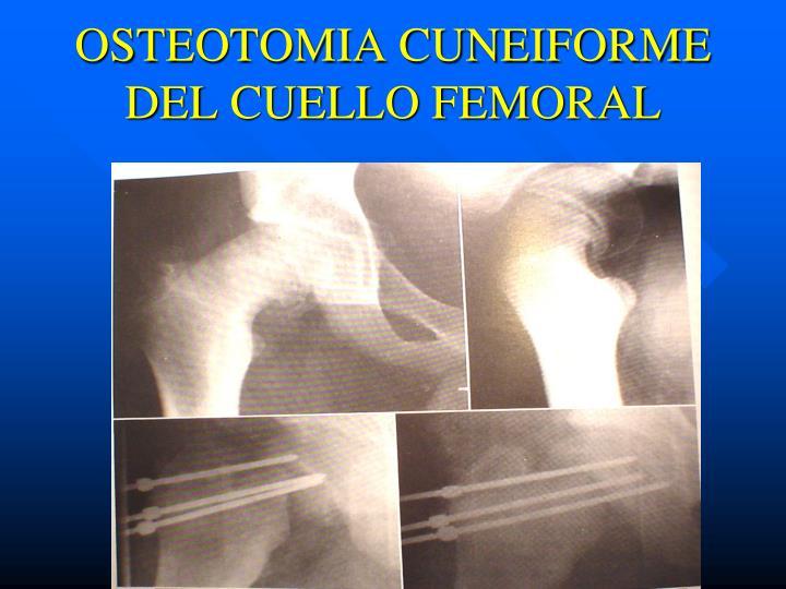 OSTEOTOMIA CUNEIFORME DEL CUELLO FEMORAL