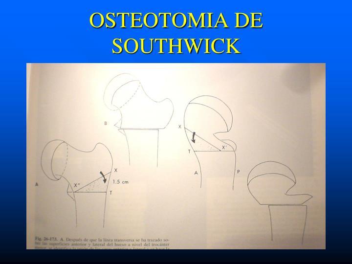 OSTEOTOMIA DE SOUTHWICK