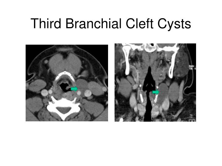 Third Branchial Cleft Cysts