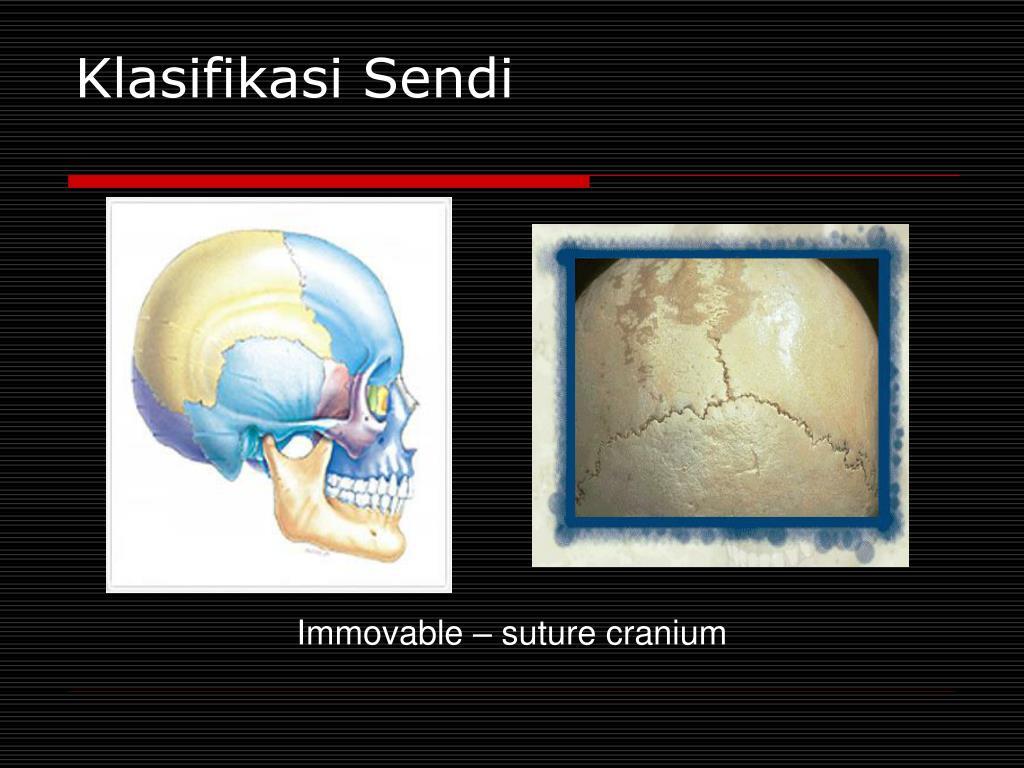 Klasifikasi Sendi