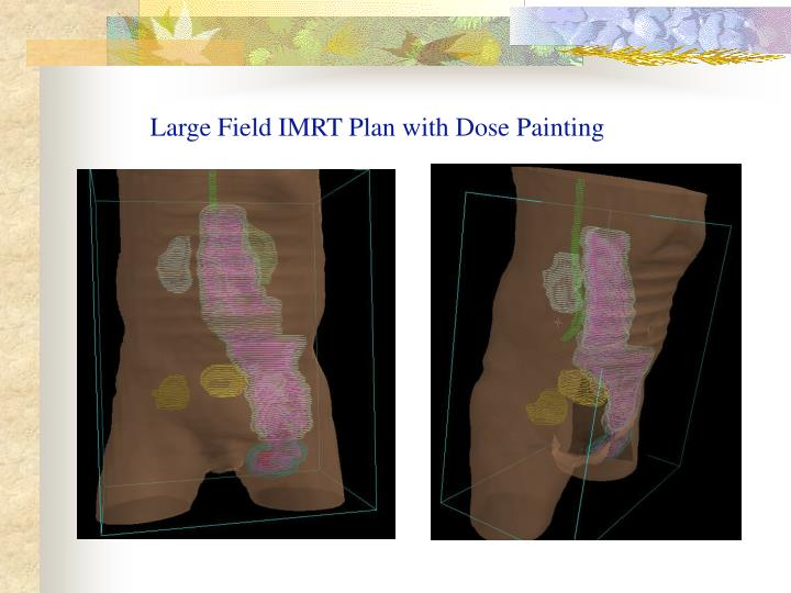 Large Field IMRT Plan with Dose Painting
