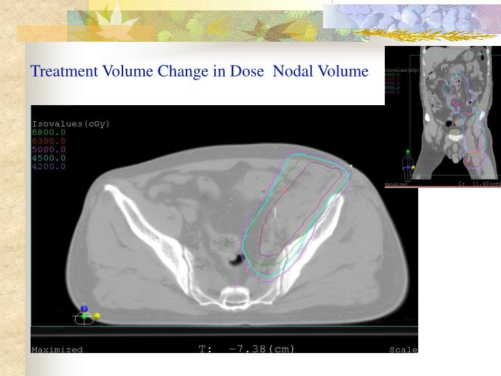 Treatment Volume Change in Dose  Nodal Volume