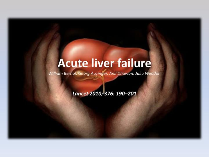 Acute liver failure william bernal georg auzinger anil dhawan julia wendon