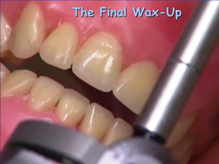 The Final Wax-Up