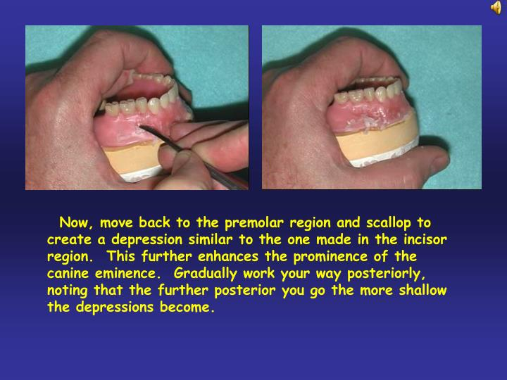 Now, move back to the premolar region and scallop to create a depression similar to the one made in the incisor region.  This further enhances the prominence of the canine eminence.  Gradually work your way posteriorly, noting that the further posterior you go the more shallow the depressions become.