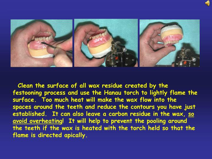 Clean the surface of all wax residue created by the festooning process and use the Hanau torch to lightly flame the surface.  Too much heat will make the wax flow into the spaces around the teeth and reduce the contours you have just established.  It can also leave a carbon residue in the wax,