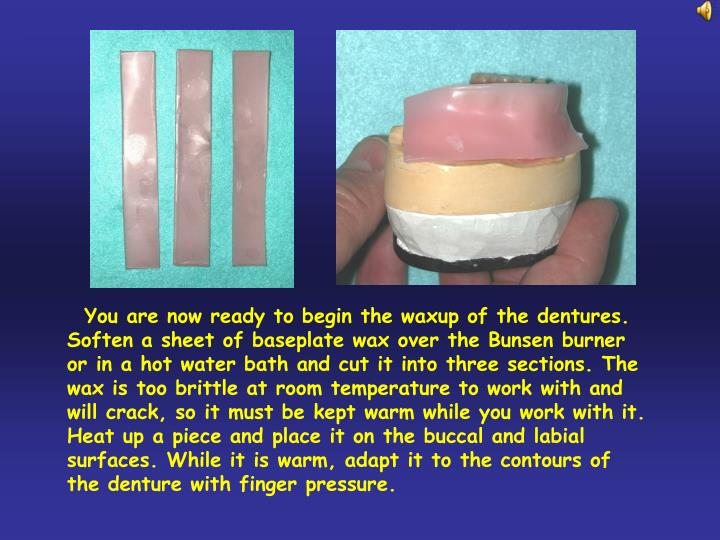 You are now ready to begin the waxup of the dentures. Soften a sheet of baseplate wax over the Bun...