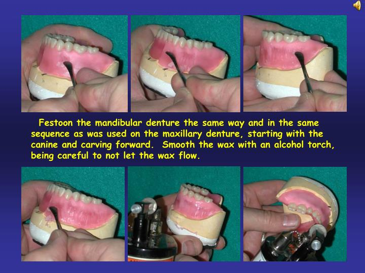 Festoon the mandibular denture the same way and in the same sequence as was used on the maxillary denture, starting with the canine and carving forward.  Smooth the wax with an alcohol torch, being careful to not let the wax flow.